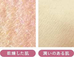 乾燥した肌と潤いのある肌の比較