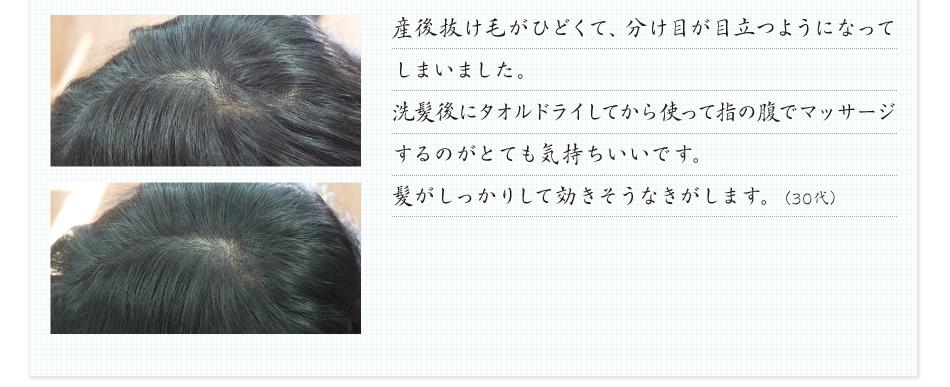 産後抜け毛がひどくて、分け目が目立つようになってしまいました。洗髪後にタオルドライしてから使って指の腹でマッサージするのがとても気持ちいいです。髪がしっかりしてハリコシもあり良さそうな気がします