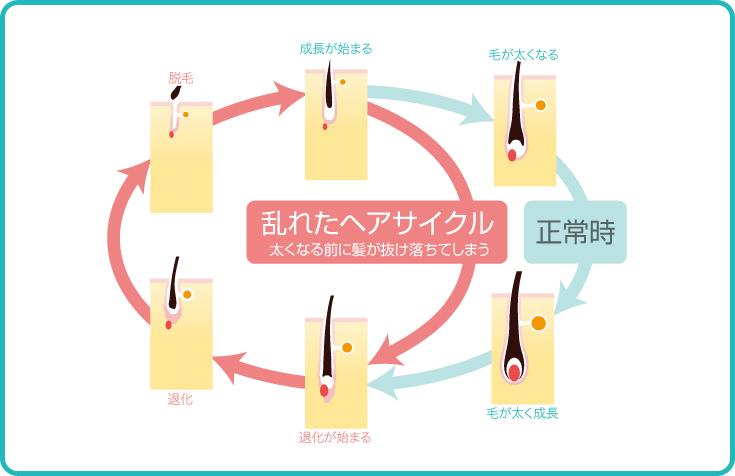 乱れたヘアサイクル 太くなる前に髪が抜け落ちてしまう 正常時→毛が太く成長→退化が始まる→退化→脱毛→成長が始まる→毛が太くなる